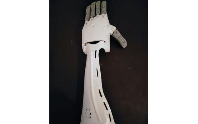 Prótesis de brazo hecho con impresión 3D